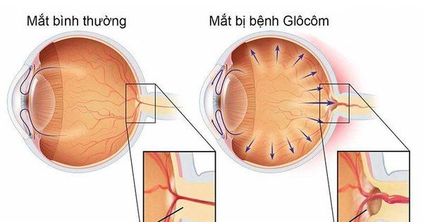 Bệnh glôcôm: Những triệu chứng thường dễ bị bỏ qua - Tuổi Trẻ Online