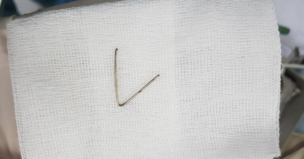 Nội soi lấy đoạn dị vật kim loại hình chữ V trong họng bé gái