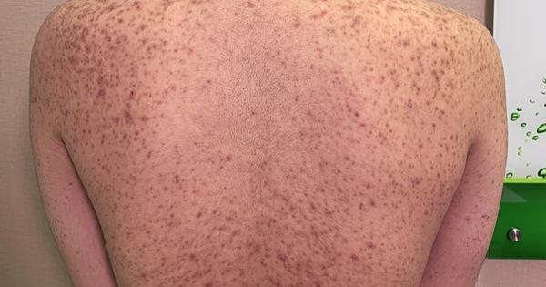 Nạn nhân tiêm silicon: 'Chích đại vào mặt, môi, ngực, mông… ai xui thì ráng chịu'